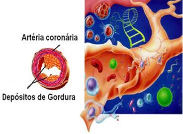 http://portaldoprofessor.mec.gov.br/storage/discovirtual/aulas/1502/imagens/colesterol.jpg